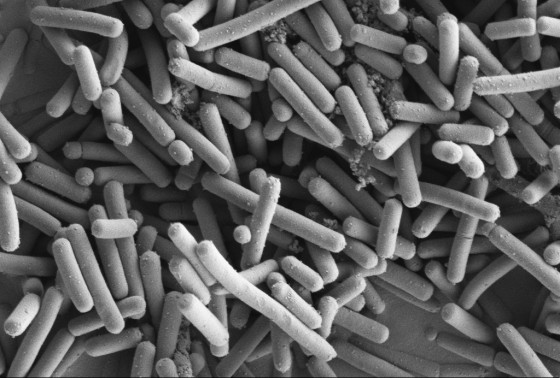 SEM of Lactobacillus johnsonii (Kathryn Cross, IFR)