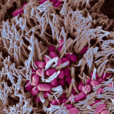 Scanning electron micrograph showing EHEC (red) adhering to human intestinal biopsy epithelium