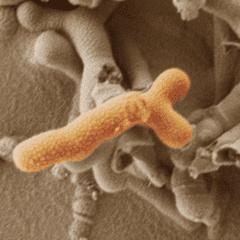 Bifidobacterium breve. Image by K.R.Hughes