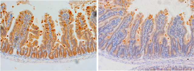 Control-treated (left) and Bifidobacterium-treated (right) intestinal epithelial cells. Image by K.R. Hughes