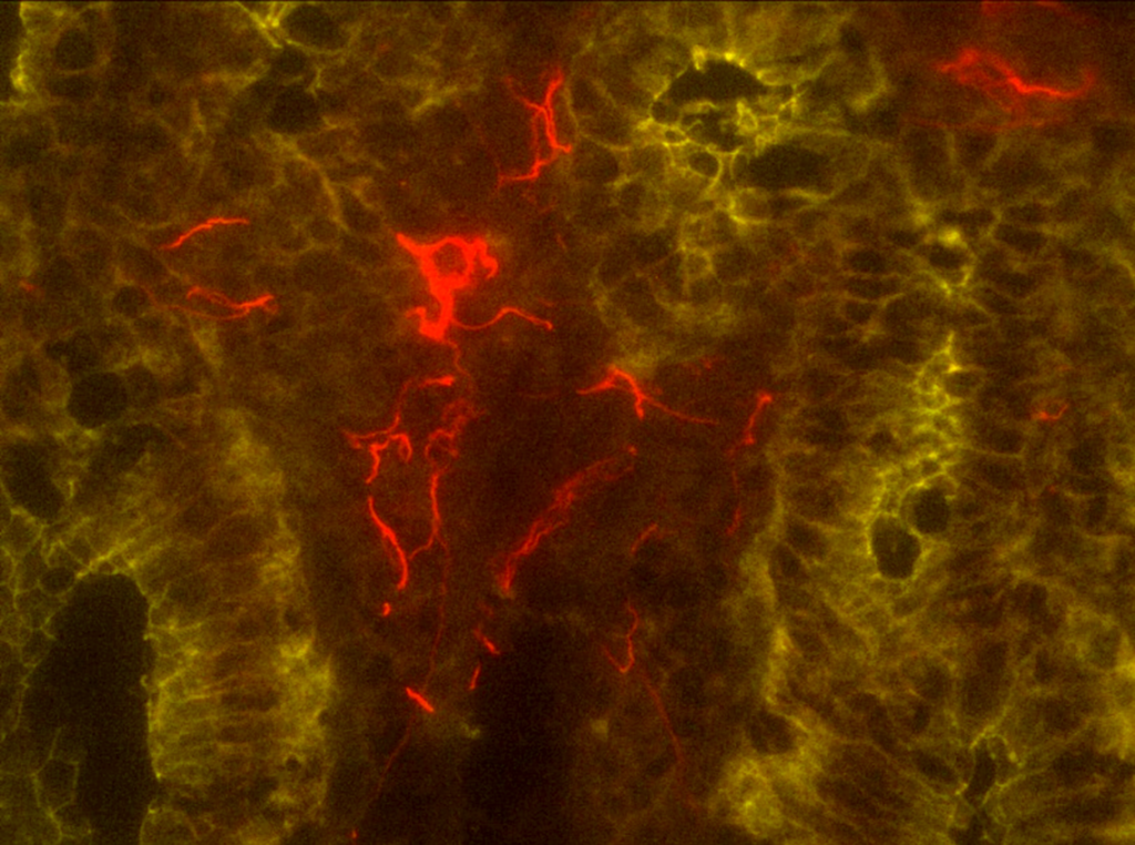 Glial cells (red) of the enteric nervous system in the villi, the projections of the gut lining